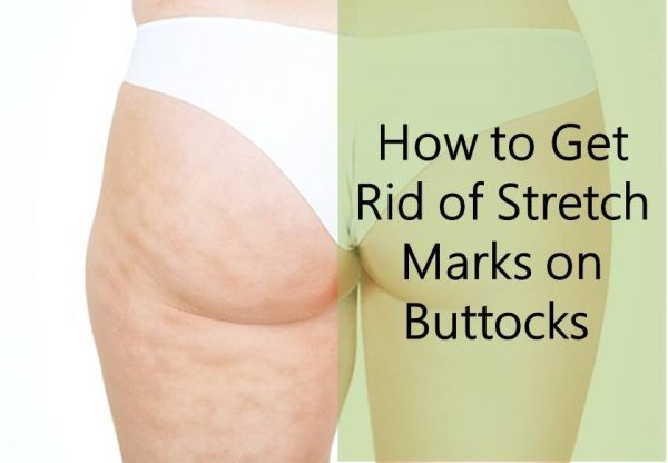 Nude stretch mark booty black girl pics
