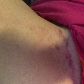 Bikini wax and bruising