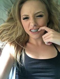 With teen pics asses braces