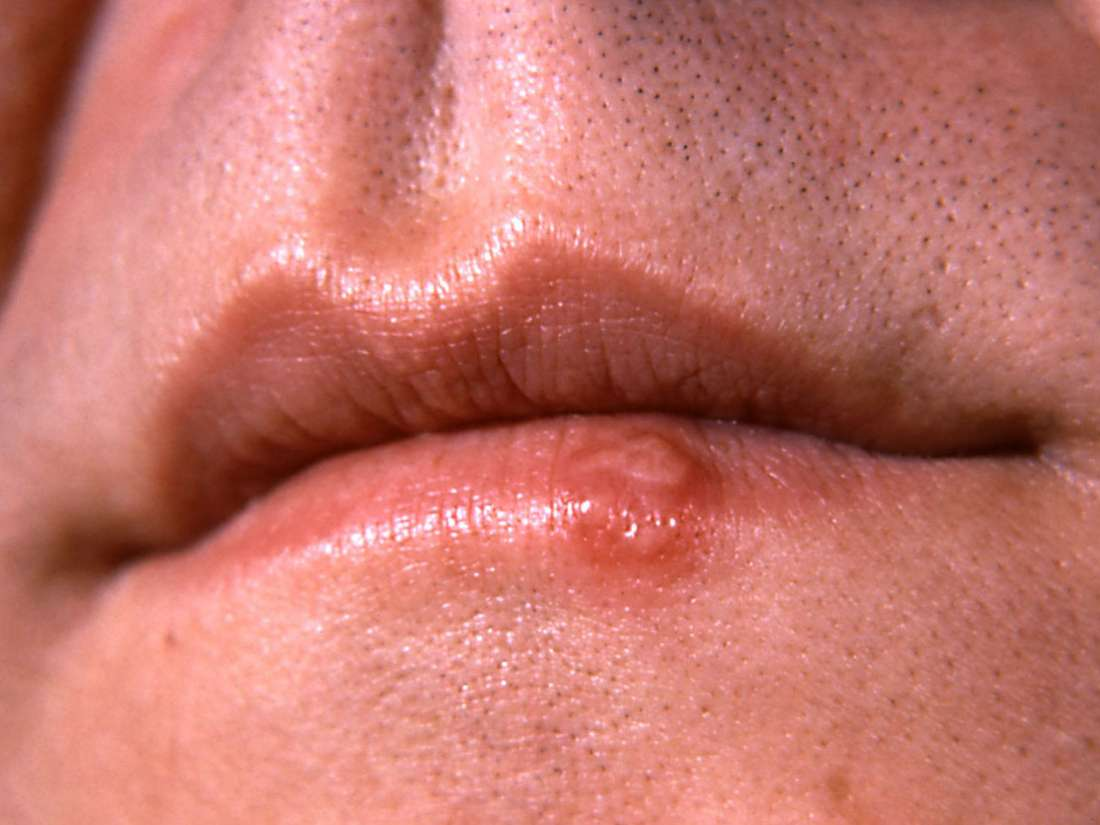 Penis on herpes signs early of