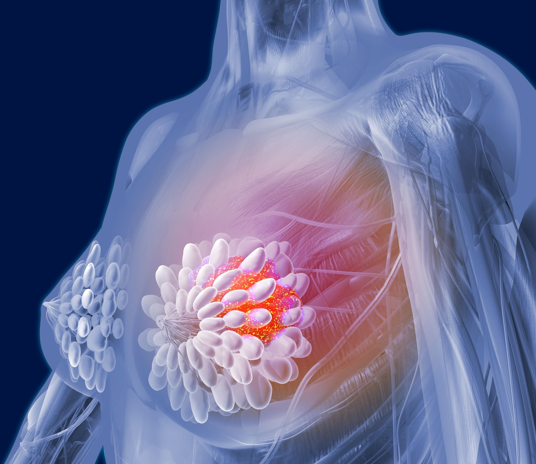 How is breast cancer prevented