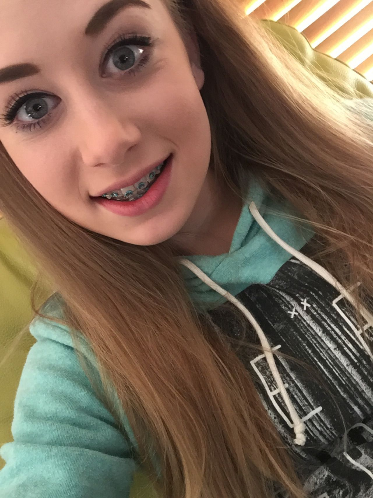 Cute girl young teens with braces facial