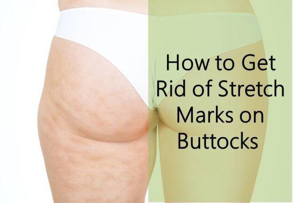 Stretch marks on thighs porn