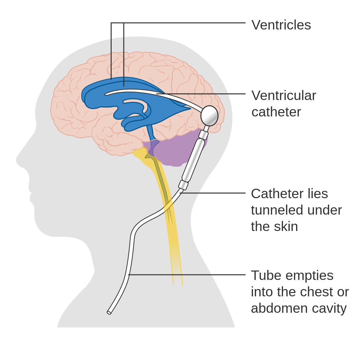 Shunt revision symptoms adults
