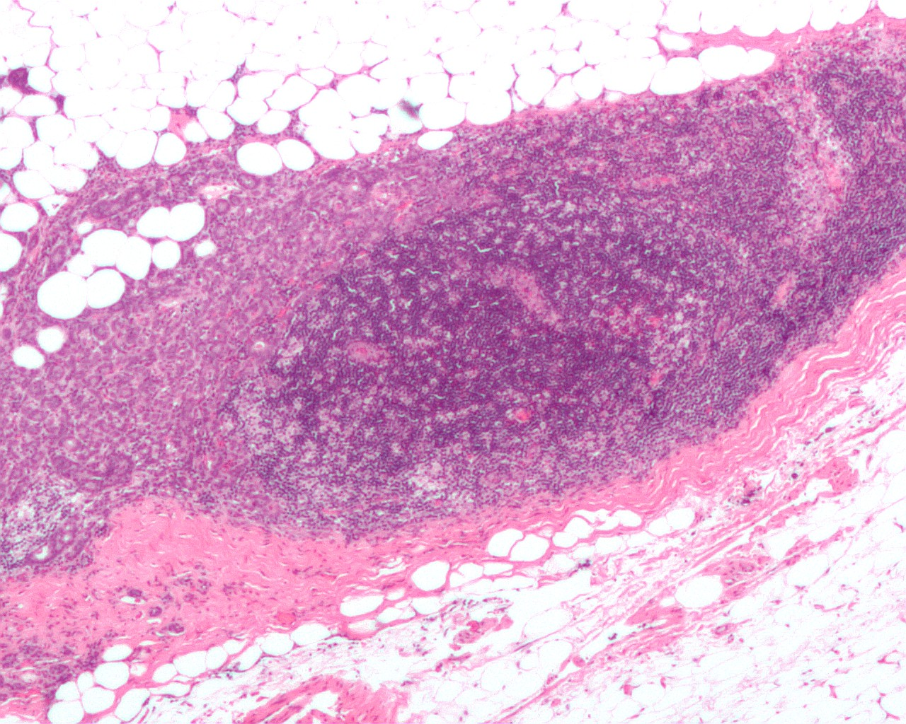 Breast cancer negative nodes metastasis