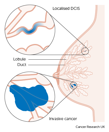 Dcis and breast cancer